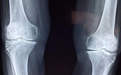 Usura della cartilagine del ginocchio